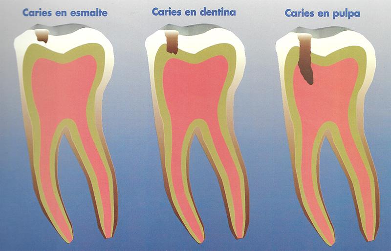 caries en pulpa en dentina