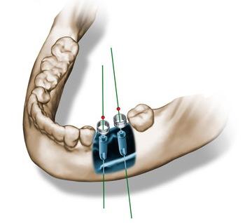 cirugia-guiada-implantes-ordenador