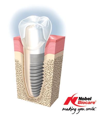 implantes-nobel-biocare-dentista-madrid